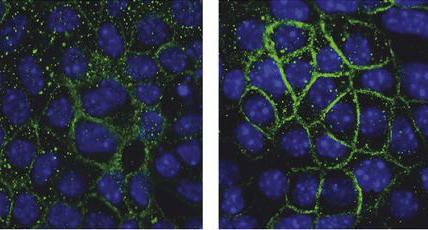 Aldosterone regulates microrna..